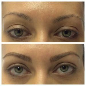 Brow-Extension_Before-After_IMG_0644