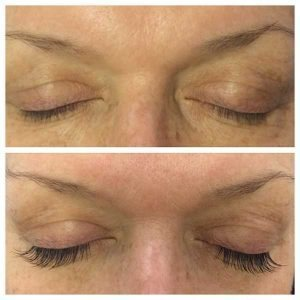 Lash-Extension_Before-After_IMG_0644